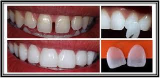 8f2575a10b03c Estética Dental - Clínica Odontológica Eleve Sorriso